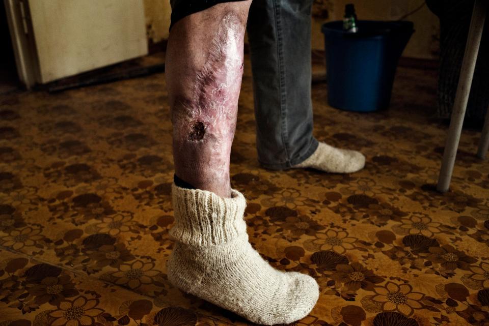 Последствия от наркотика крокодил одни из самых страшных среди последствий от других веществ. Всего одна инъекция приводит к отмиранию окружающих тканей.
