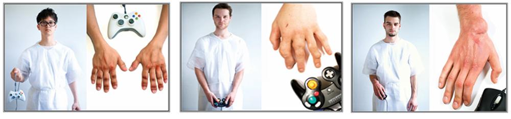 игромания, лечение игромании